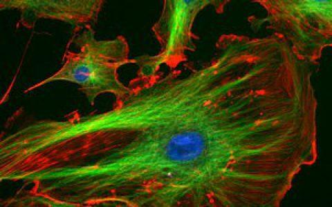 常用细胞器典型标志性蛋白